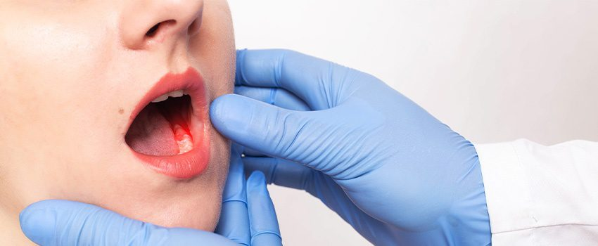 10 Signs You Need Dental Emergency Care