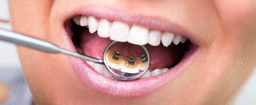 7 Things You Need to Know About Lingual Braces