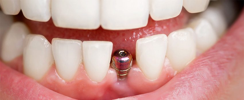Can Dental Implants Help Preserve Bone Health