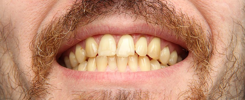 Drug-Induced Teeth Discoloration Causes and Treatment Options