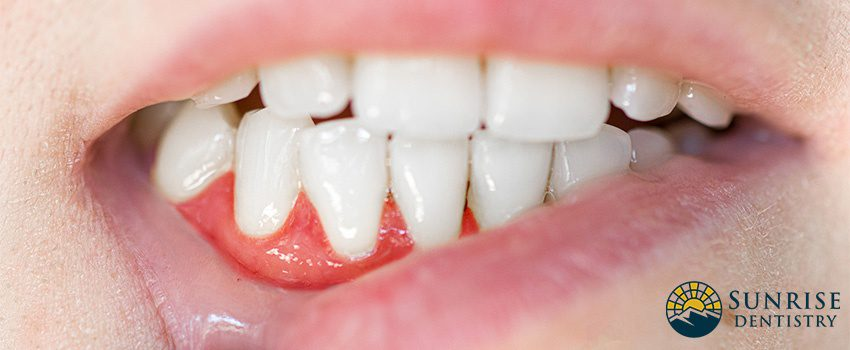 Receding Gums - Causes, Treatment, and Prevention